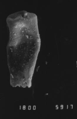 <i><i>Cingulochitina</i> | Cingulochitina? sp.</i><br />Dubovskoye borehole, 1274.00 m, Paadla Stage ( 754-1139)