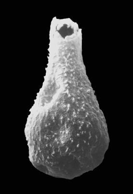 <i><i>Sphaerochitina sphaerocephala</i></i><br />Ohesaare borehole, 72.95 m, Kuressaare Stage ( 576-60)