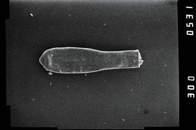 <i><i>Conochitina</i> | Conochitina aff. proboscifera</i><br />Ohesaare borehole, 161.70 m, Jaagarahu Stage ( 754-1205)