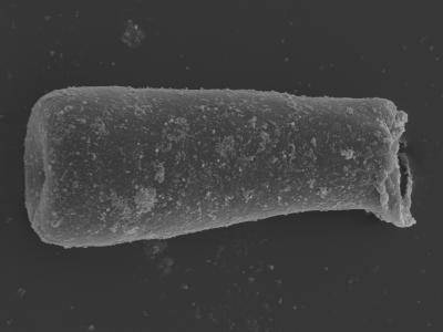 <i><i>Conochitina argillophila</i> | Conochitina cf. argillophila</i><br />Kolka 54 borehole, 427.40 m, Jaagarahu Stage ( 754-468)