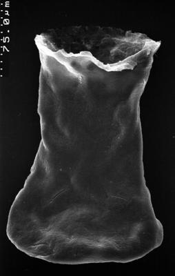 <i><i>Chitinozoa</i></i><br />,  m,  ( 1532-92)