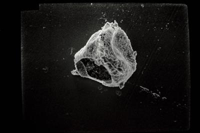<i><i>Ancyrochitina</i>   Ancyrochitina sp.</i><br />Seliste 173 borehole, 343.50 m, Juuru Stage ( 754-1774)