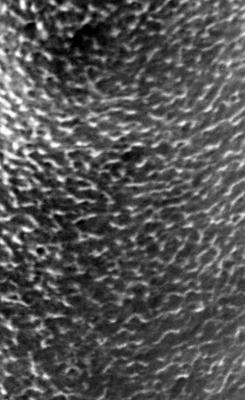 <i><i>Chitinozoa</i> | Conochitina aff. emmastensis Nestor, 1982</i><br />Varbla 502 borehole, 155.00 m, Adavere Stage ( 272-92)