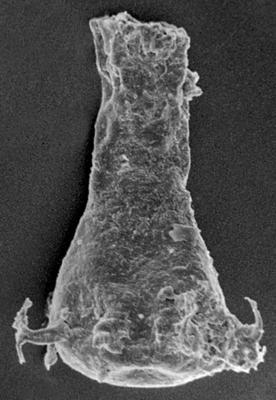 <i><i>Ancyrochitina paulaspina</i></i><br />Ruhnu 500 borehole, 417.50 m, Jaani Stage ( 220-30)
