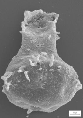 <i><i>Ancyrochitina convexa</i></i><br />Staicele 4 borehole, 410.50 m, Raikküla Stage ( 754-1367)