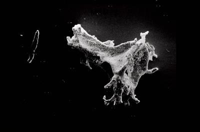 <i><i>Ancyrochitina gutnica</i> | Ancyrochitina gutnica</i><br />Ruhnu 500 borehole, 371.50 m, Jaagarahu Stage ( 754-545)