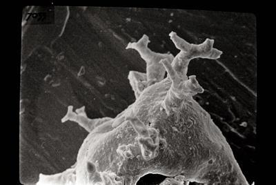 <i><i>Ancyrochitina</i>   Ancyrochitina sp. sp.</i><br />Ohesaare borehole, 441.50 m, Juuru Stage ( 754-706)
