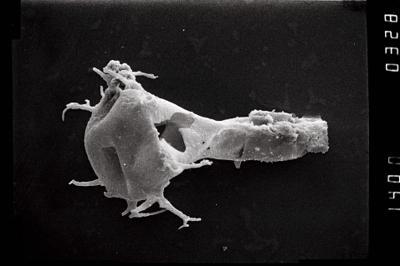 <i><i>Ancyrochitina</i>   Ancyrochitina sp. e</i><br />Ohesaare borehole, 200.80 m, Jaagarahu Stage ( 754-1064)