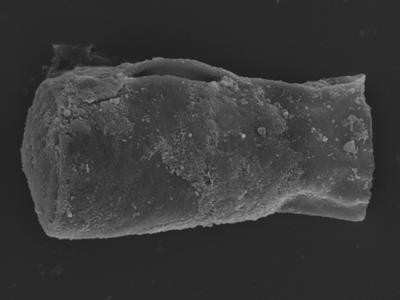 <i><i>Cingulochitina</i> | Cingulochitina? sp. </i><br />Kolka 54 borehole, 408.40 m, Jaagarahu Stage ( 754-1263)