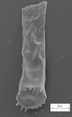 <i><i>Eisenackitina dolioliformis</i></i><br />Staicele 4 borehole, 298.20 m, Adavere Stage ( 754-1371)