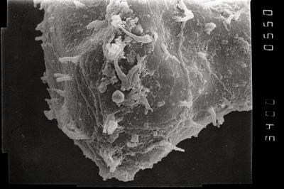 <i><i>Ramochitina uncinata</i></i><br />Ohesaare borehole, 165.90 m, Jaagarahu Stage ( 754-1086)