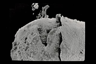 <i><i>Angochitina echinata</i> | Angochitina cf. echinata</i><br />Pavilosta 51 borehole, 564.40 m, Kaugatuma Stage ( 754-615)