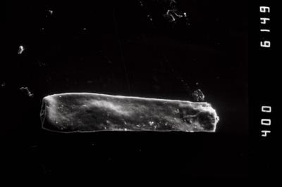 <i><i>Conochitina claviformis</i></i><br />Ventspils D-3 borehole, 655.00 m, Ludlow ( 754-956)