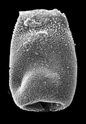 <i><i>Belonechitina</i> | Belonechitina aff. meifodensis Mullins et Loydell, 2001</i><br />Kolka 54 borehole, 588.90 m, Adavere Stage ( 546-43)