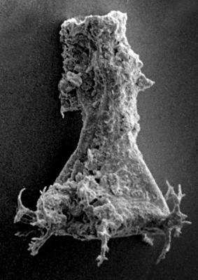 <i><i>Chitinozoa</i> | Ancyrochitina cf. paulaspina Nestor, 1994</i><br />Ohesaare borehole, 181.45 m, Jaagarahu Stage ( 272-52)