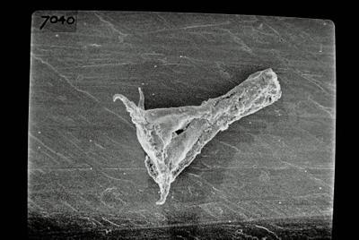 <i><i>Ancyrochitina</i> | Ancyrochitina sp. sp.</i><br />Ruhnu 500 borehole, 361.90 m, Jaagarahu Stage ( 754-694)