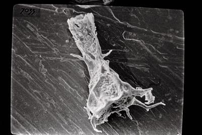 <i><i>Ancyrochitina</i>   Ancyrochitina sp. sp.</i><br />Ruhnu 500 borehole, 361.90 m, Jaagarahu Stage ( 754-697)