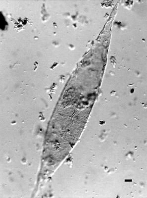 Leiofusa obliquipunctata Uutela et Tynni, 1991, GIT 344-150