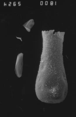 <i><i>Cingulochitina</i> | Cingulochitina sp.</i><br />Dubovskoye borehole, 1257.00 m, Kuressaare Stage ( 754-1146)
