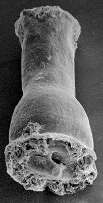 <i><i>Cingulochitina cingulata</i></i><br />Ohesaare borehole, 260.30 m, Jaagarahu Stage ( 272-191)