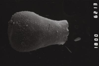 <i><i>Eisenackitina lagenomorpha</i></i><br />Ohesaare borehole, 13.95 m, Kaugatuma Stage ( 754-982)