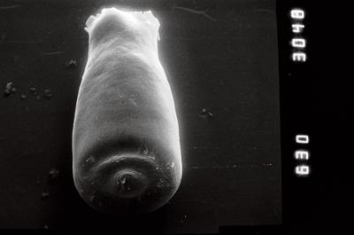 <i><i>Conochitina</i> | Conochitina cf. emmastensis</i><br />Nagli 106 borehole, 627.00 m, Adavere Stage ( 754-864)