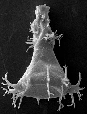 <i><i>Ancyrochitina plurispinosa</i></i><br />Ohesaare borehole, 200.80 m, Jaagarahu Stage ( 272-15)