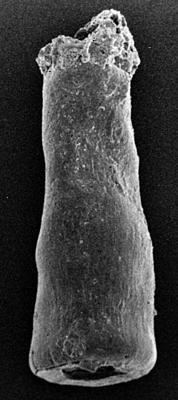 <i><i>Conochitina linearistriata</i></i><br />Ohesaare borehole, 206.00 m, Jaagarahu Stage ( 217-13)