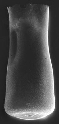 <i><i>Conochitina visbyensis</i></i><br />Ohesaare borehole, 349.40 m, Adavere Stage ( 272-135)