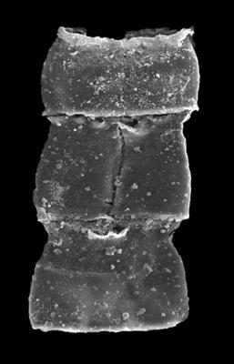 <i><i>Cingulochitina gorstyensis</i></i><br />Kolka 54 borehole, 472.40 m, Jaagarahu Stage ( 546-83)
