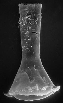 <i><i>Chitinozoa</i> | Clathrochitina aff. clathrata Eisenack, 1959</i><br />Nagli 106 borehole, 613.50 m, Adavere Stage ( 272-58)