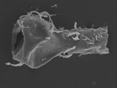 <i><i>Ramochitina uncinata</i></i><br />Kolka 54 borehole, 434.60 m, Jaagarahu Stage ( 754-464)