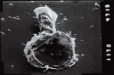 <i><i>Anthochitina primula</i></i><br />Viki borehole, 140.10 m, Adavere Stage ( 754-1117)