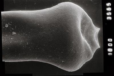 <i><i>Conochitina pachycephala</i> | Conochitina aff. pachycephala</i><br />Ohesaare borehole, 294.16 m, Jaagarahu Stage ( 754-811)