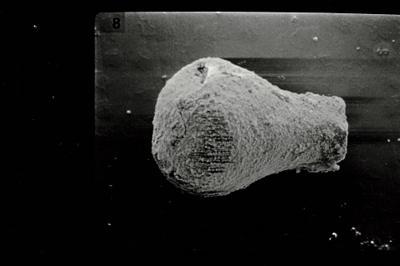 <i><i>Eisenackitina oviformis</i> | Eisenackitina sp. (cf. oviformis)</i><br />Ohesaare borehole, 9.80 m, Kaugatuma Stage ( 754-819)