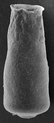 <i><i>Conochitina fortis</i></i><br />Ohesaare borehole, 213.50 m, Jaagarahu Stage ( 220-53)