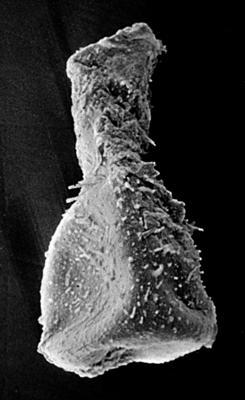 <i><i>Sphaerochitina indecora</i></i><br />Ruhnu 500 borehole, 293.70 m, Jaagarahu Stage ( 219-8)