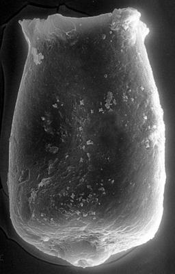 <i><i>Chitinozoa</i> | Conochitina aff. fortis Nestor, 1982</i><br />Ohesaare borehole, 208.10 m, Jaagarahu Stage ( 272-98)