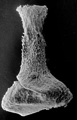 <i><i>Fungochitina pistilliformis</i></i><br />Ohesaare borehole, 26.20 m, Kaugatuma Stage ( 189-39)