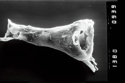 <i><i>Plectochitina</i>   Plectochitina cf. pachyderma</i><br />Varbla 502 borehole, 104.10 m, Jaani Stage ( 754-1026)