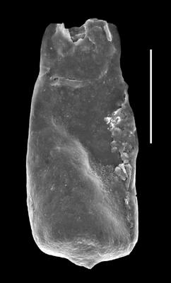 <i><i>Conochitina visbyensis</i> | </i><br />Grötlingbo 1 borehole, Gotland, 379.60 m, Adavere Stage ( 688-37)