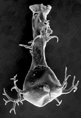 <i><i>Ancyrochitina gutnica</i></i><br />Ruhnu 500 borehole, 314.75 m, Jaagarahu Stage ( 272-44)