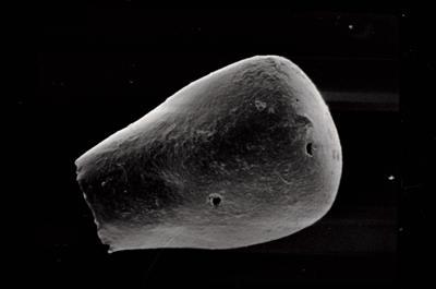 <i><i>Conochitina lagena</i></i><br />Ruhnu 500 borehole, 362.85 m, Jaagarahu Stage ( 754-573)