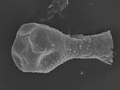 <i><i>Sphaerochitina lycoperdoides</i></i><br />Ohesaare borehole, 146.95 m, Rootsiküla Stage ( 754-367)