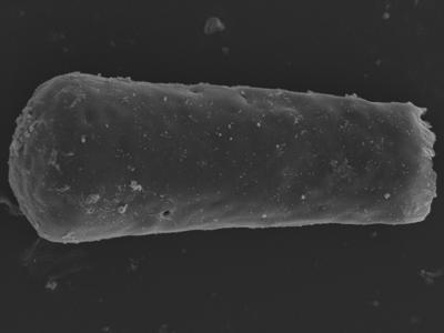 <i><i>Conochitina argillophila</i></i><br />Kolka 54 borehole, 408.40 m, Jaagarahu Stage ( 754-1259)