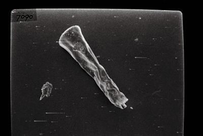 <i><i>Spinachitina</i> | Spinachitina?</i><br />Ikla borehole, 509.90 m, Juuru Stage ( 754-147)
