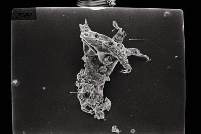 <i><i>Ancyrochitina primitiva</i></i><br />Ruhnu 500 borehole, 413.20 m, Jaagarahu Stage ( 754-119)