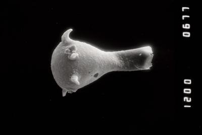<i><i>Plectochitina</i> | Plectochitina cf. pachyderma</i><br />Riksu 803 borehole, 89.25 m, Jaagarahu Stage ( 754-1325)