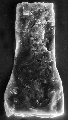 <i><i>Chitinozoa</i>   Vitreachitina sp. 2 Nestor, 1994</i><br />Viki borehole, 171.60 m, Adavere Stage ( 272-196)