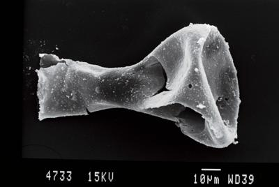 <i><i>Ancyrochitina brevispinosa</i></i><br />Ohesaare borehole, 24.00 m, Kaugatuma Stage ( 754-85)